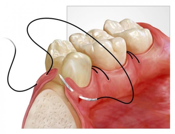 Chirurgie dentară dental nicolăică