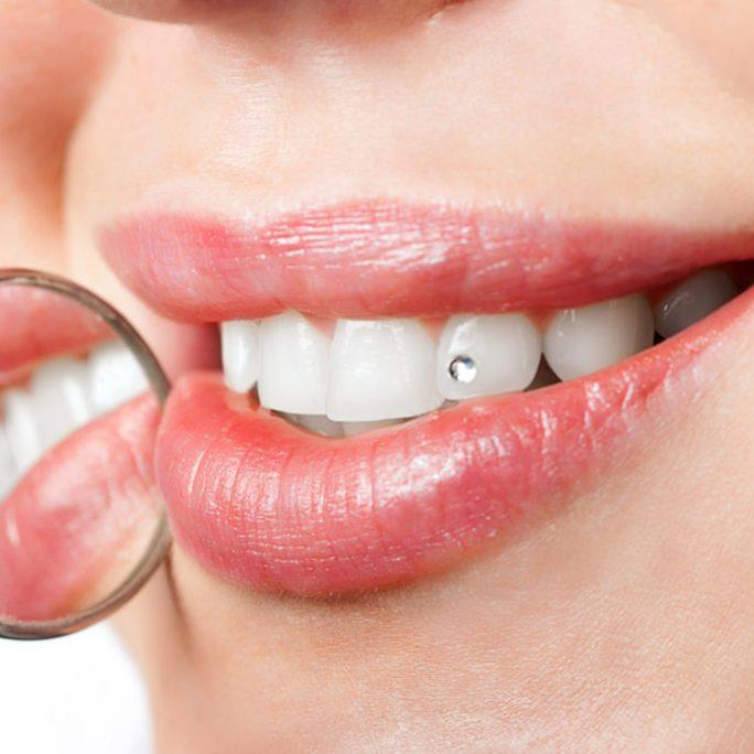 Estetica dentara dental nicolaica