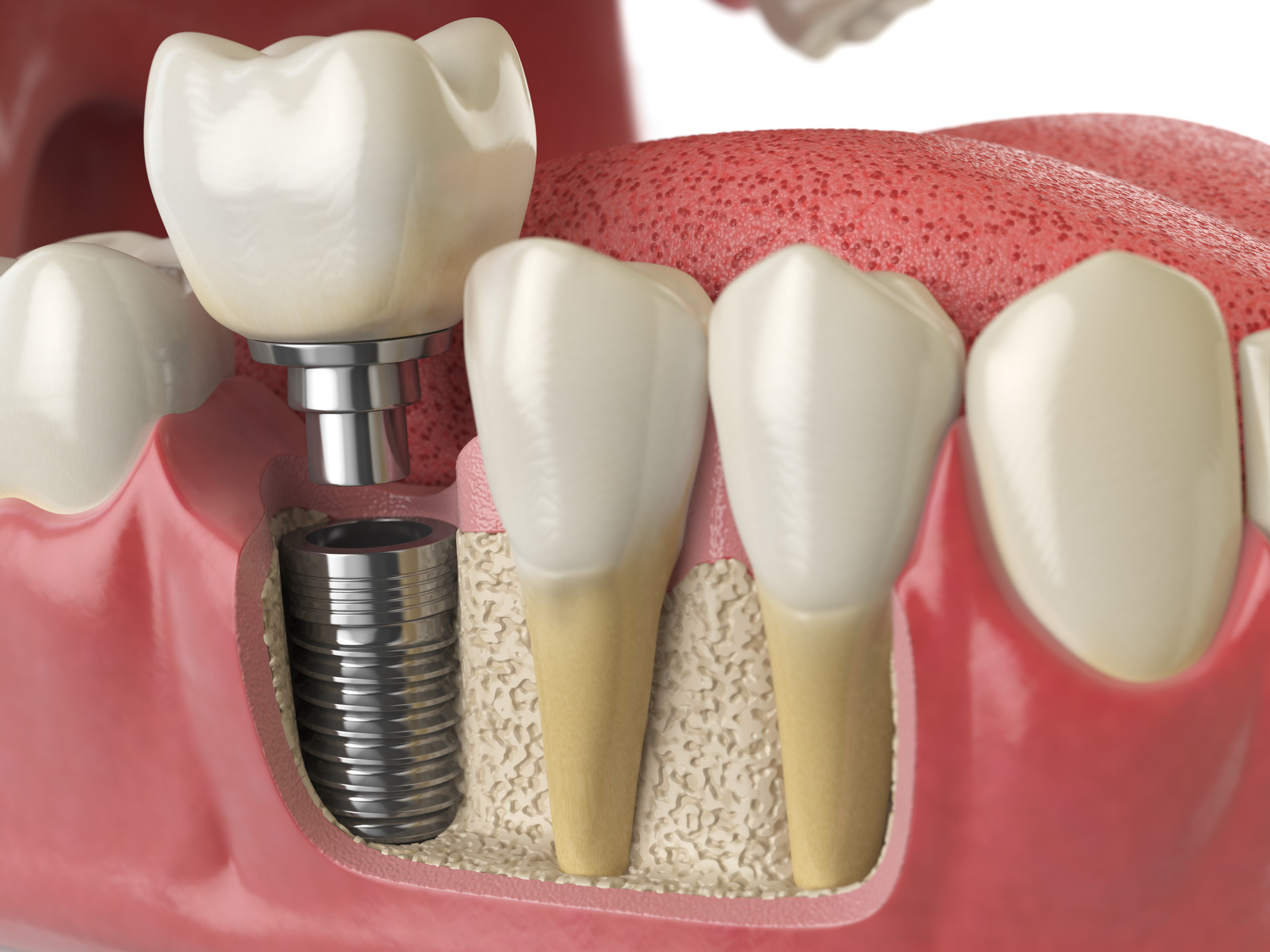 Anatomy of healthy teeth and tooth dental implant in human denturra.