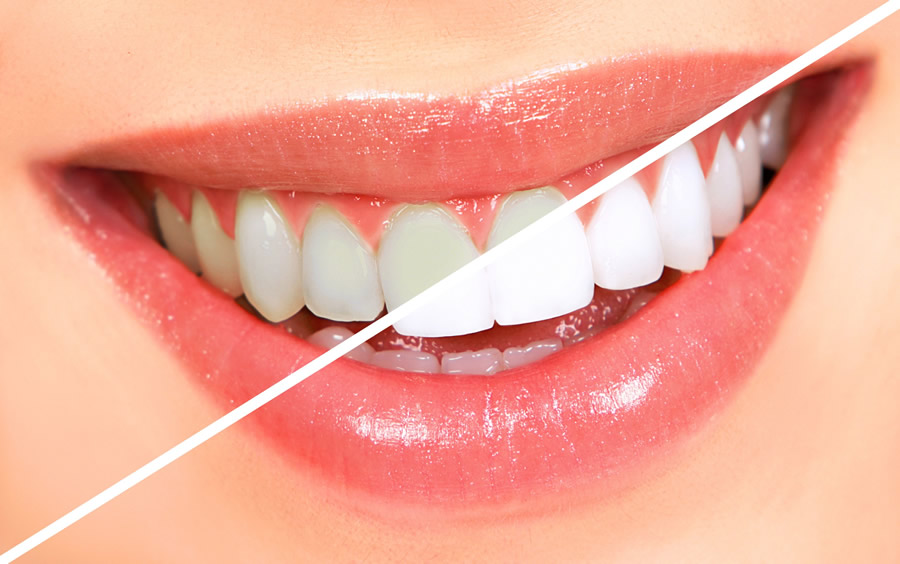 albiri dentare dental nicolaica