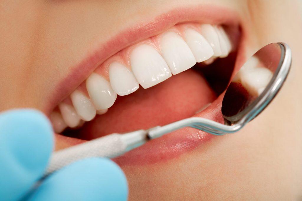 profilaxie si igienra orala dental nicolaica
